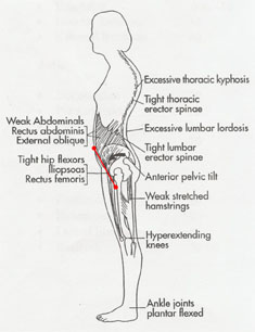 sore upper lower back while taking walks